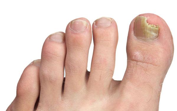 mycoses des pieds en été